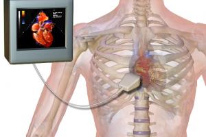 echo-cardiogram-ajmer